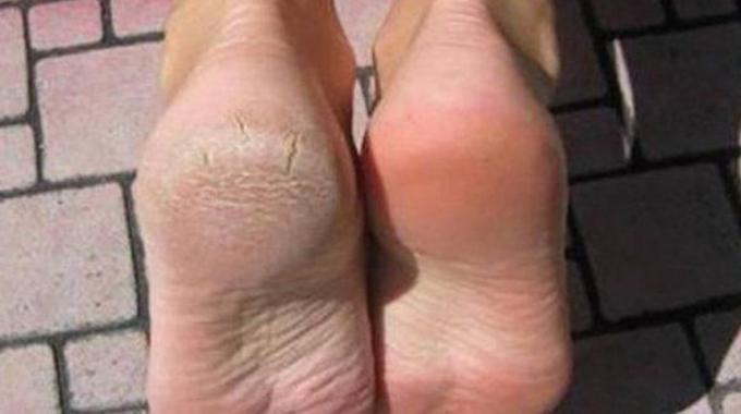 Comment enlever la peau morte des pieds naturellement ?